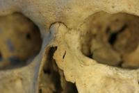 conflict skull